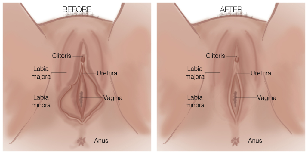 CHC Labiaplasty Diagram
