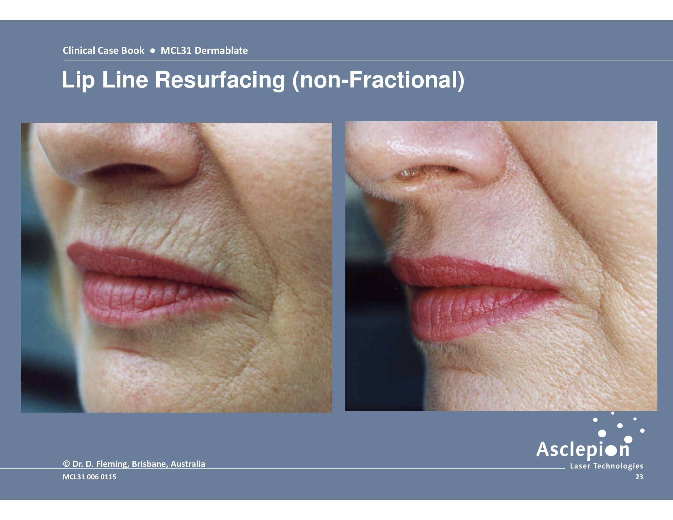 MCL 31 DERMABLATE Erbium Laser Skin Resurfacing