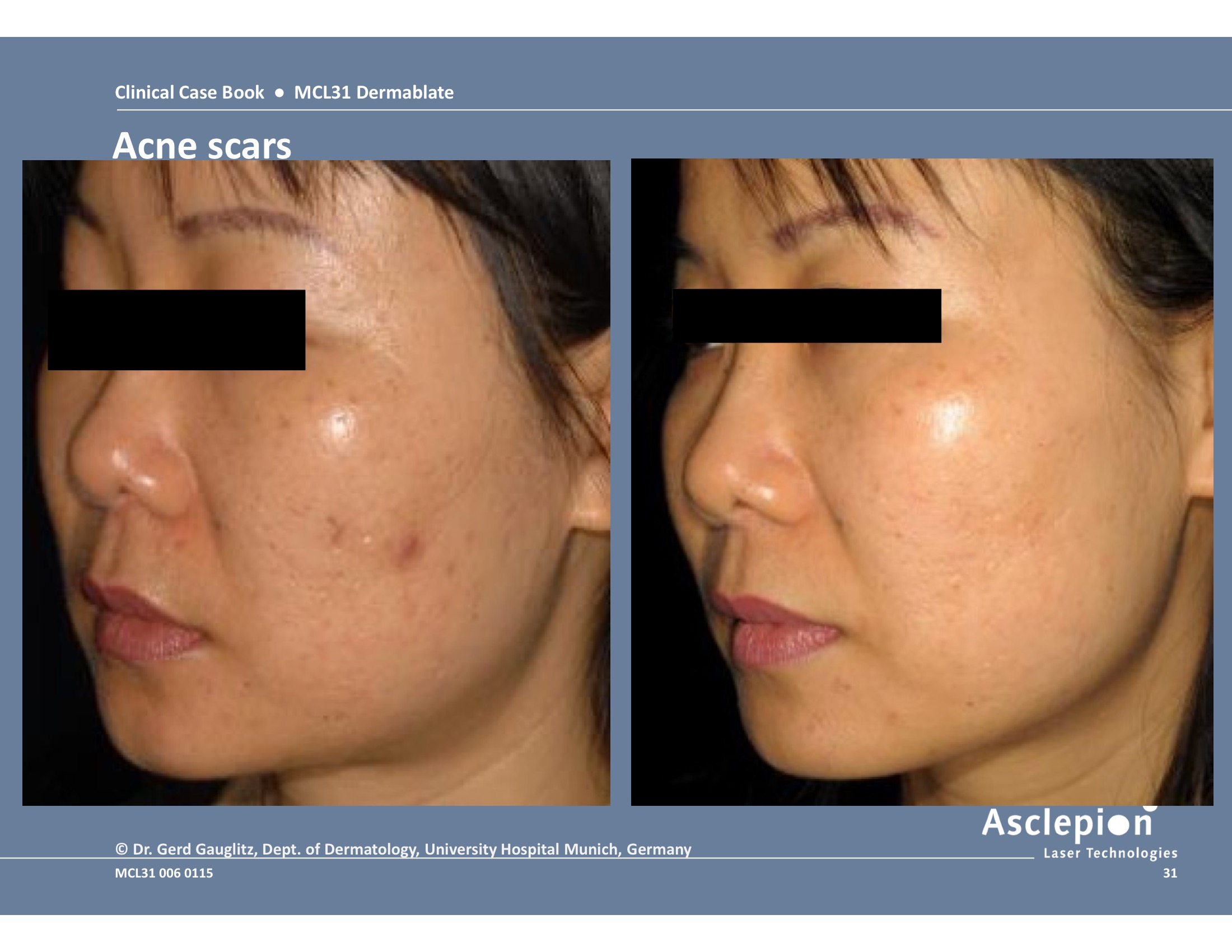 MCL 31 DERMABLATE Erbium Laser Skin Resurfacing - Contemporary