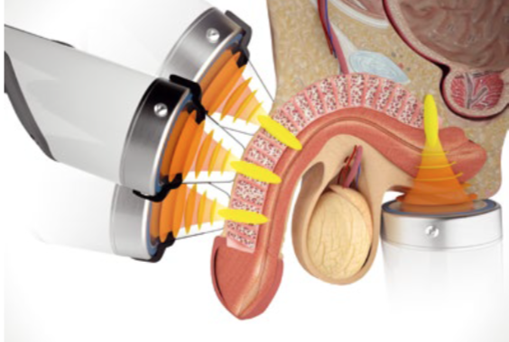 extracorporeal shock wave therapy unitedhealthcare